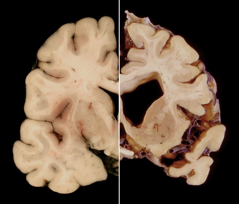Macroscopic brain
